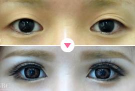 >目の整形